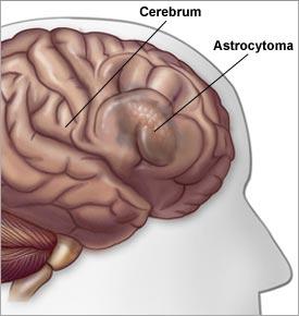 Brain tumor symptoms in adults